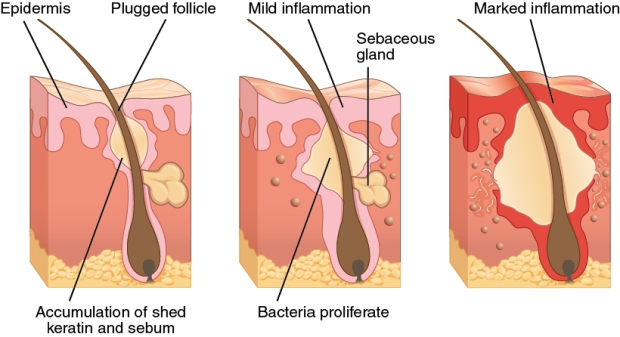 clogged-pores-diagram