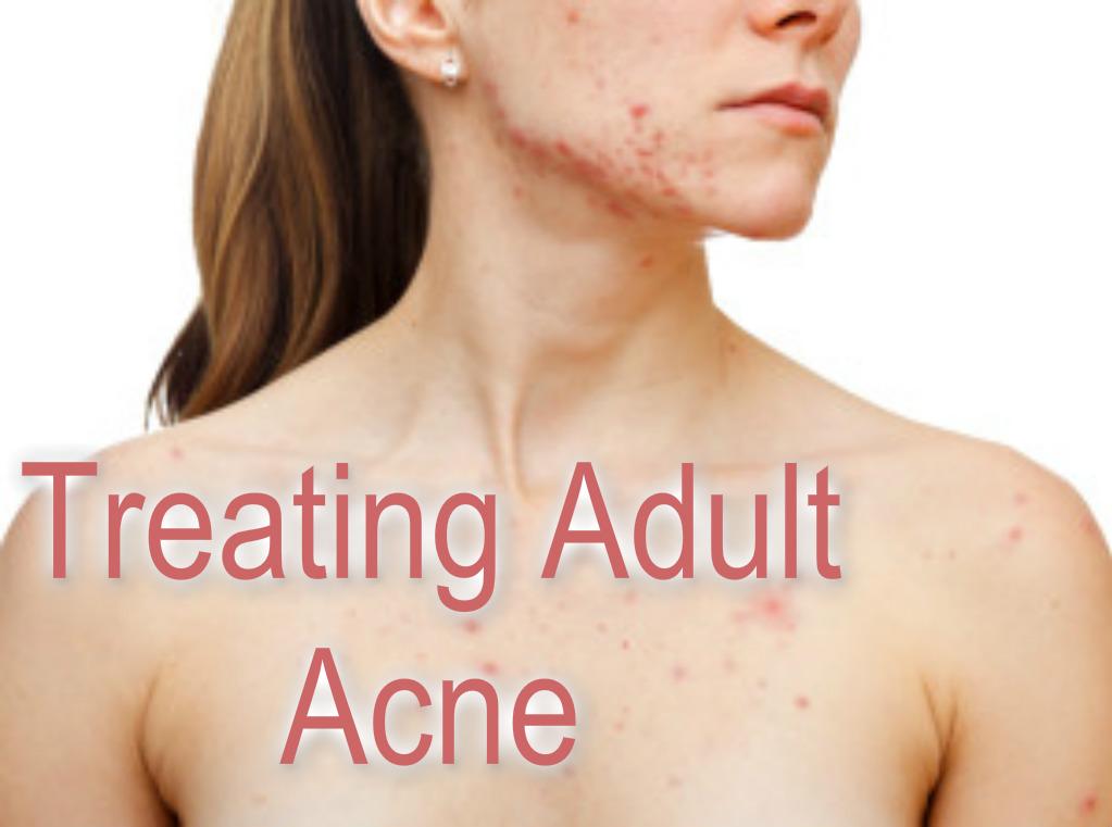 adult acne treat